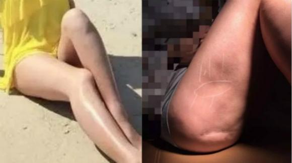 女子丰臀移植大腿脂肪 术后一年大腿凹凸不平